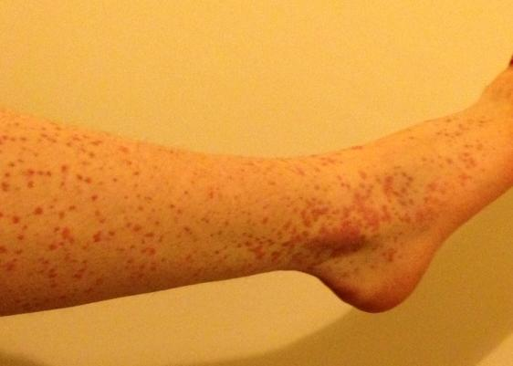 red rash on lower legs #11